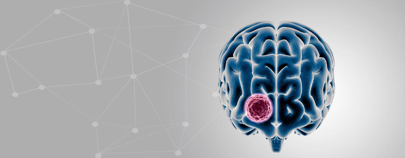 Cirugía de Tumores Cerebrales